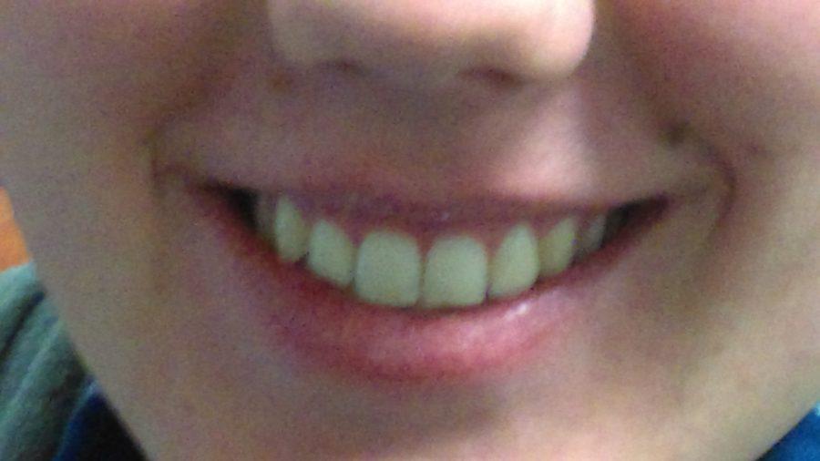 PSA+Topic%3A+Dental+Hygiene